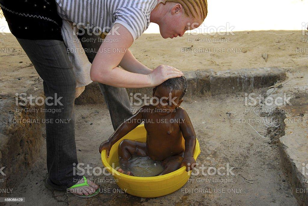 albino woman stock photo