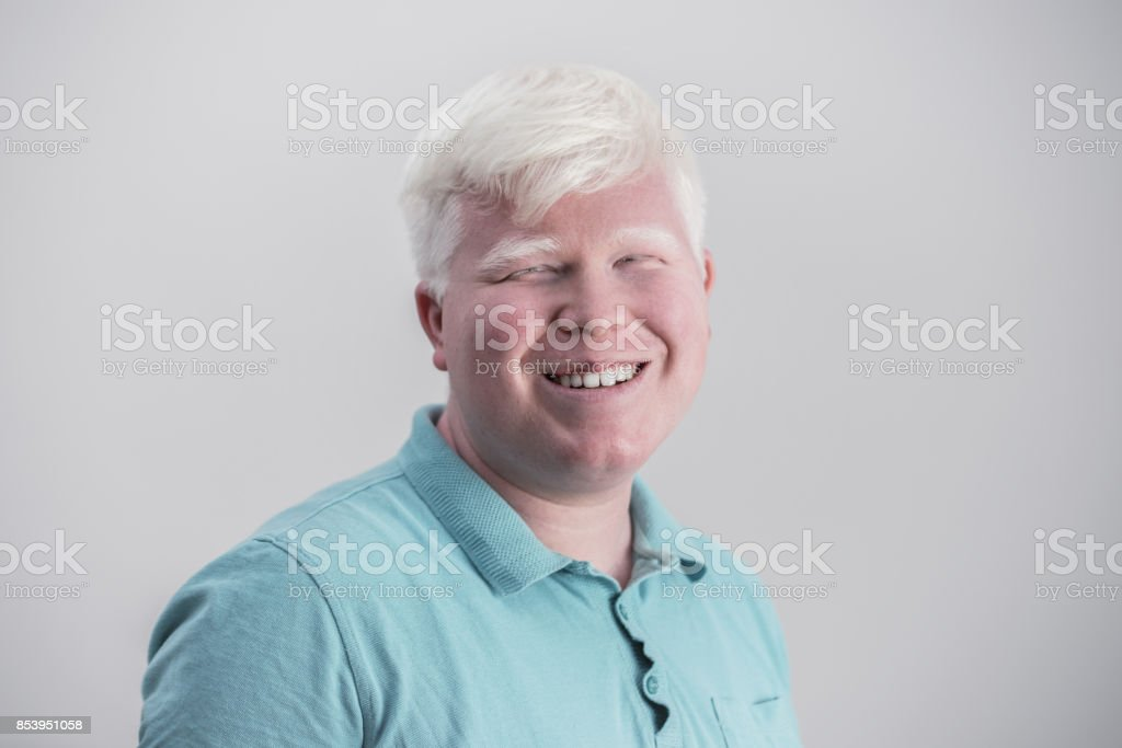 Albino young man portrait. Blond guy isolated at white background. Albinism, pale skin. – zdjęcie