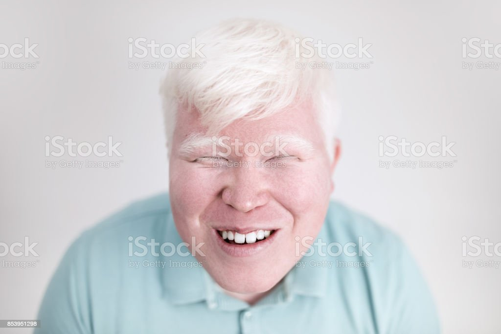 Albino young man portrait. Smiling man isolated at white background. Albinism, pale skin. – zdjęcie