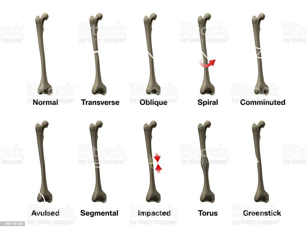 All Types of Bone Fractures stock photo