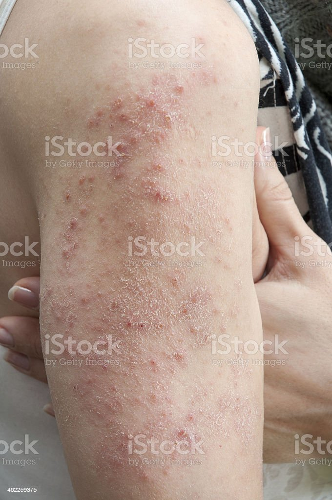 allergic rash dermatitis stock photo