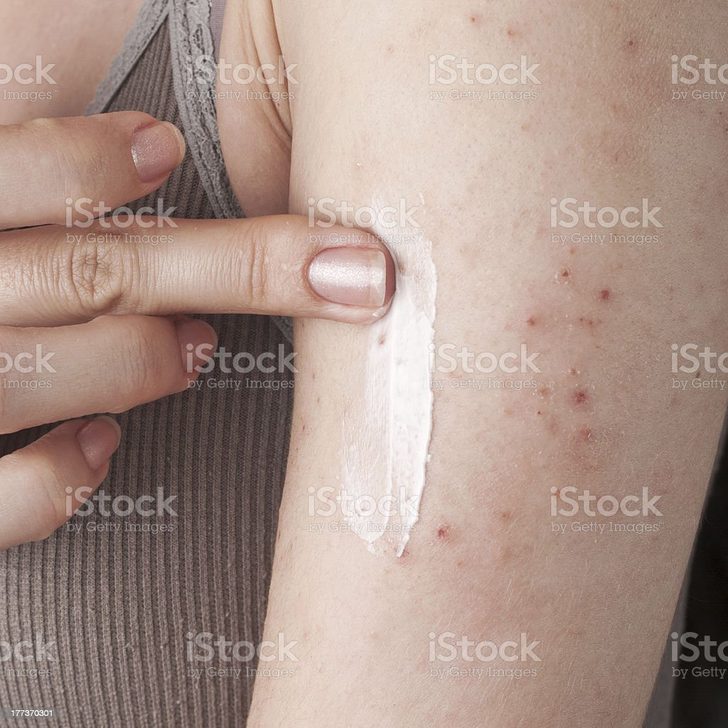 allergic rash dermatitis skin texture of patient stock photo