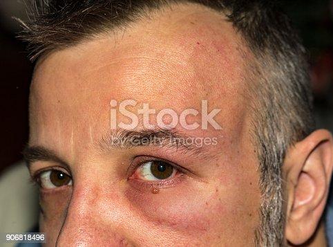 istock Allergic reaction 4 906818496
