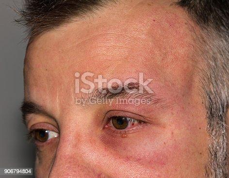 istock Allergic reaction 906794804