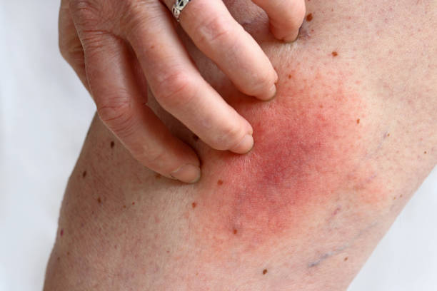 Allergic reaction to a bee sting on a woman's leg. Allergic rash Allergic reaction to a bee sting on a woman's leg. Allergic rash skin condition stock pictures, royalty-free photos & images