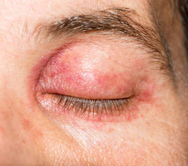 allergic skin irritation inflammation rash around the eye - eyelid stock photos and pictures