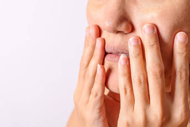 Allergic women have eczema dry nose and lips on winter season closeup. Allergic women have eczema dry nose and lips on winter season closeup. dry stock pictures, royalty-free photos & images