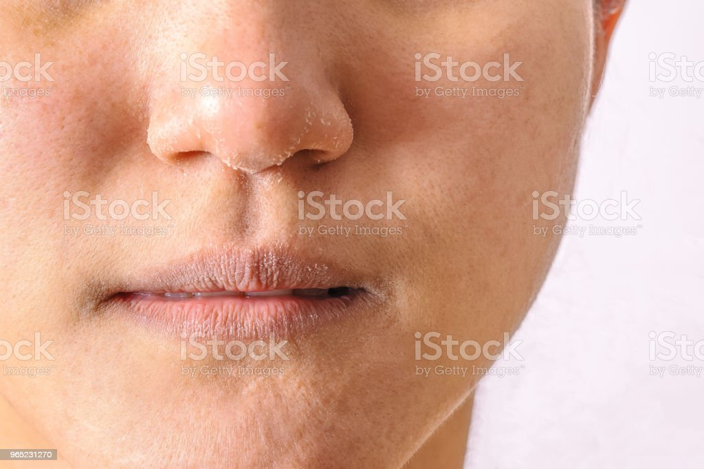 Allergic women have eczema dry nose and lips on winter season closeup. stock photo