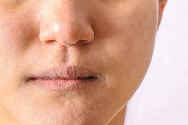 allergic women have eczema dry nose and lips on winter season closeup. - dry stock photos and pictures