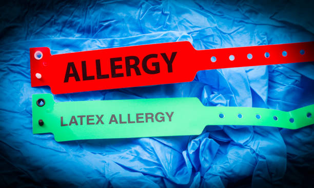 Allergy And Latex Allergy Allergy and latex allergy bracelets over top blue protective gloves latex stock pictures, royalty-free photos & images