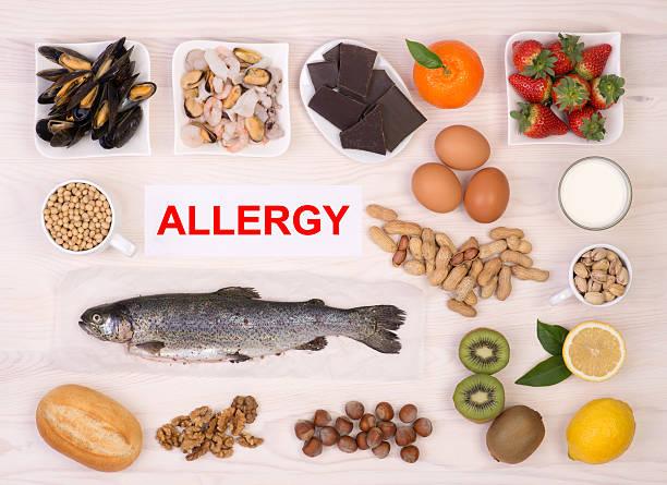 食品アレルギー原因 - 食物アレルギー ストックフォトと画像