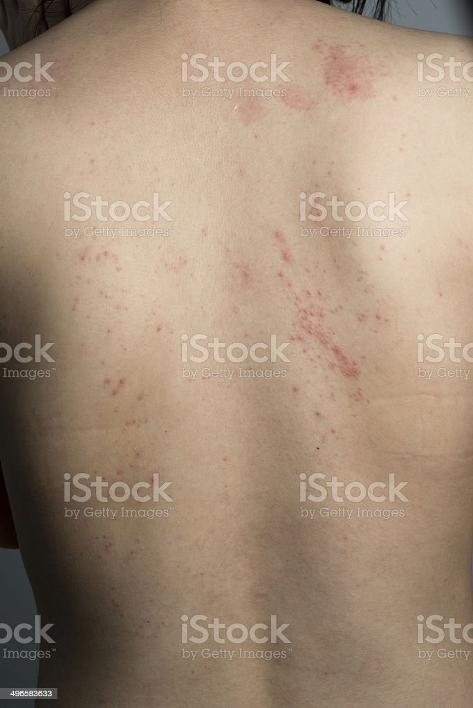 allergy ill skin on back stock photo