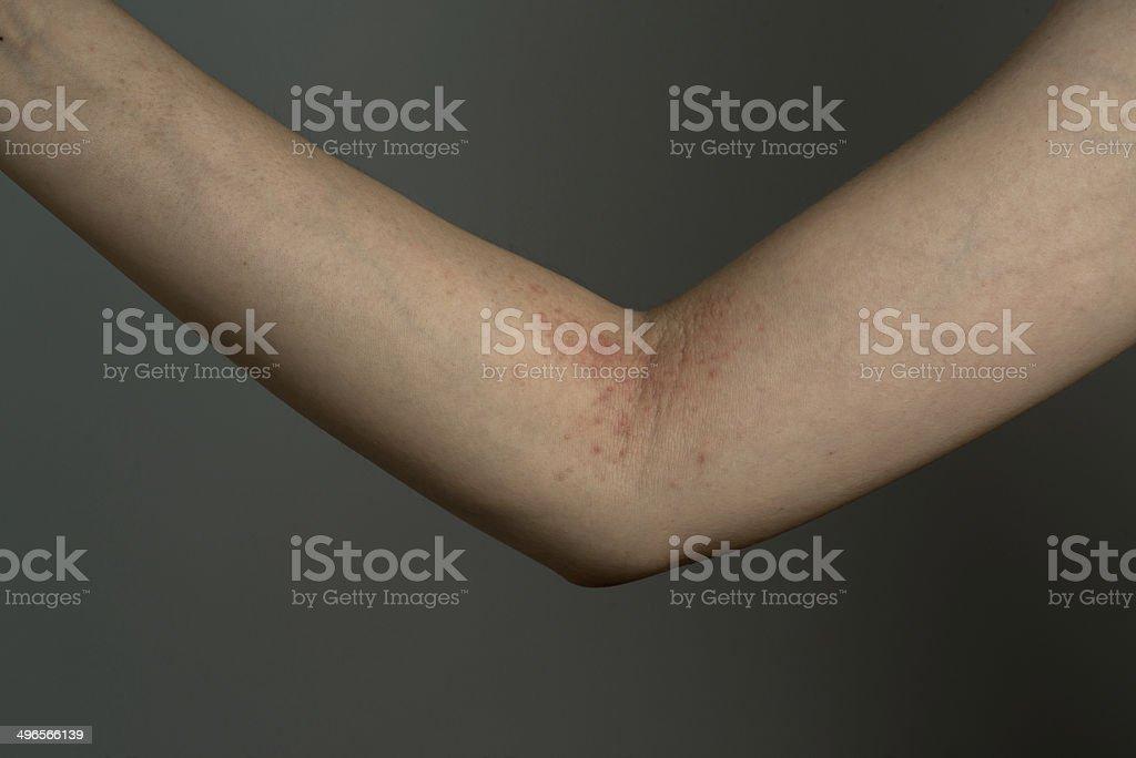 allergy ill skin on hand stock photo