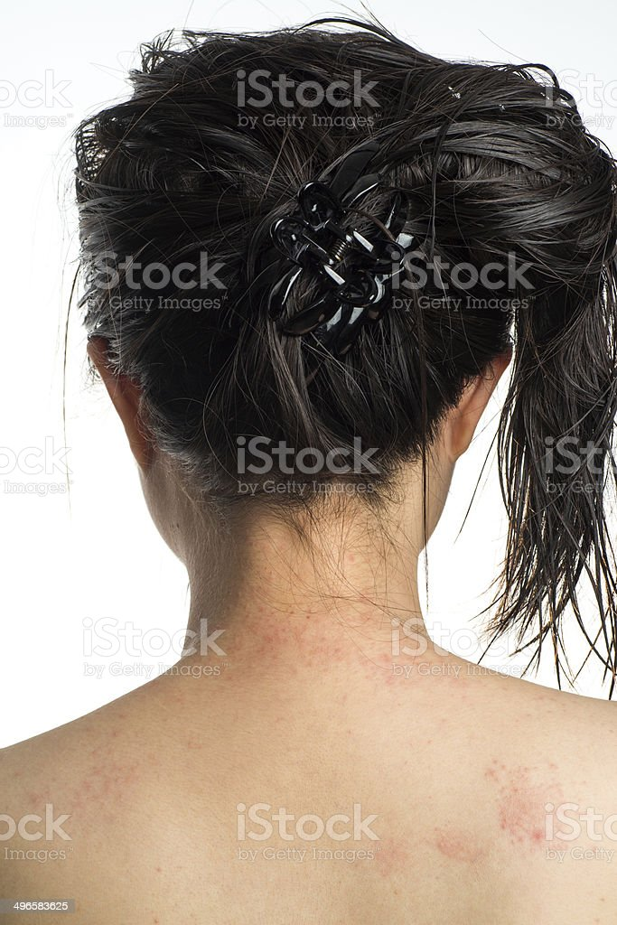 allergy ill skin on neck stock photo