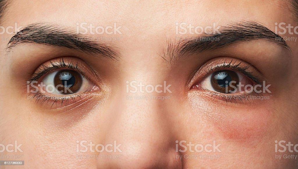allergy reaction on eye stock photo