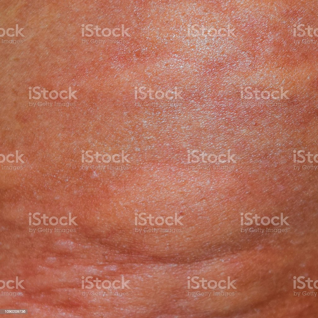 Allergy skin back and sides. Allergic reactions on the skin in the...