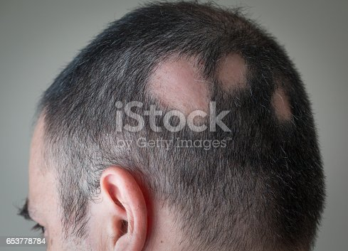 istock Alopecia Aerata - Spot Baldness 653778784