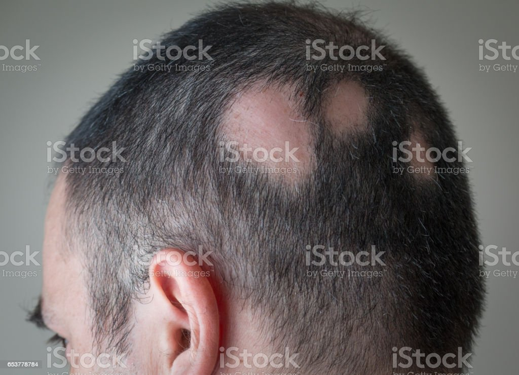 Alopecia Aerata - Spot Baldness stock photo