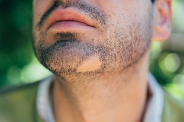 Alopecia Areata Bart