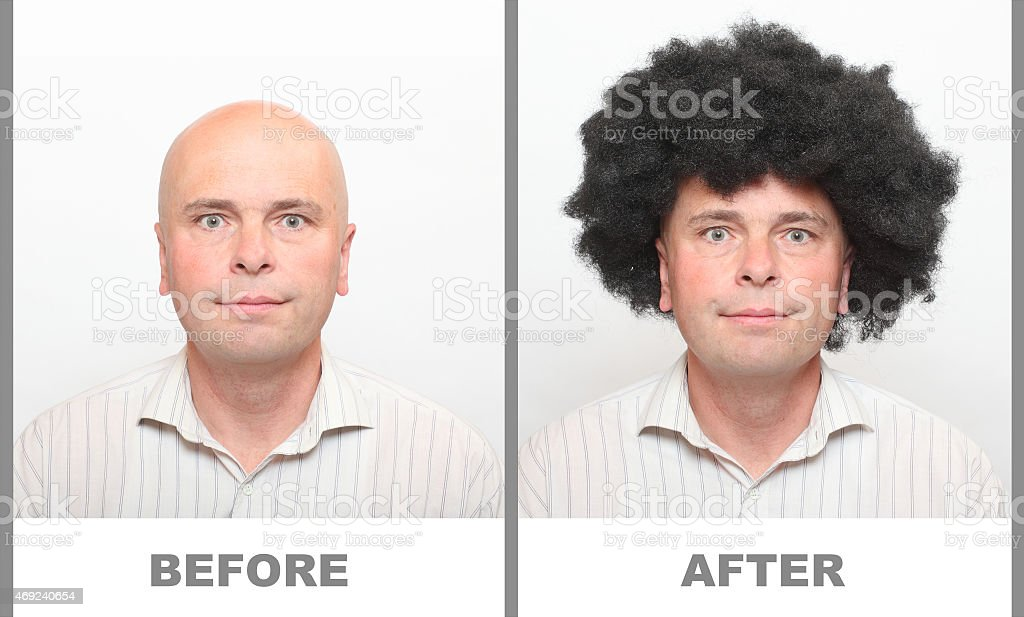 Alopecia. stock photo