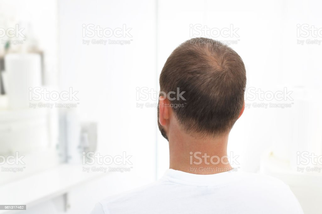 Alopecia – Foto