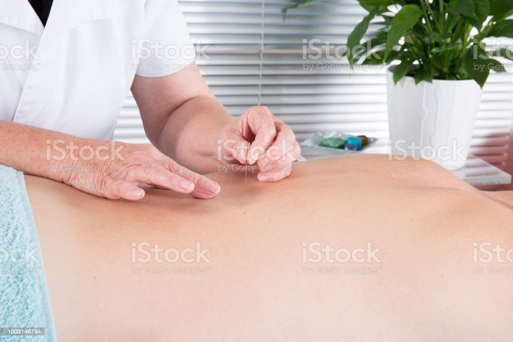 alternative medicine Close-up male back with steel needles during procedure of acupuncture therapy stock photo