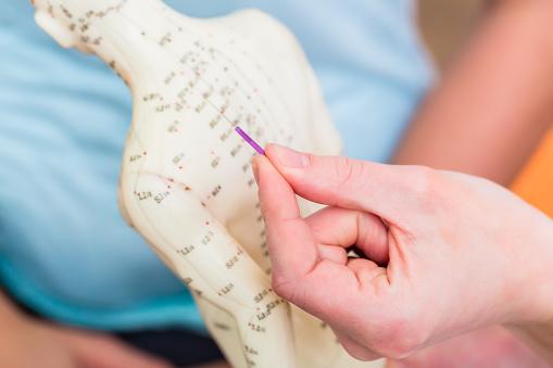 Alternative Practitioner Explaining Acupuncture Stock