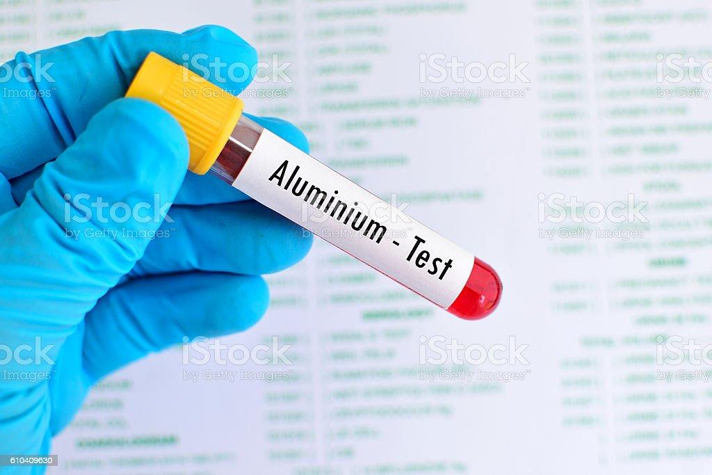 Aluminium test stock photo