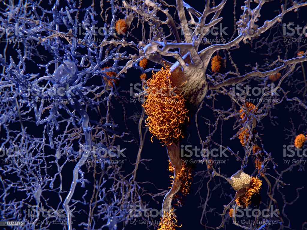 Alzheimer disease, neurons with amyloid plaques stock photo
