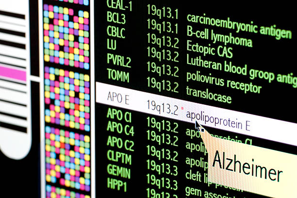 Alzheimer disease stock photo