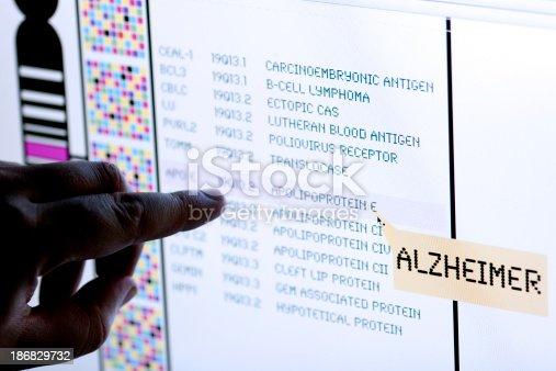 istock Alzheimer syndrome 186829732