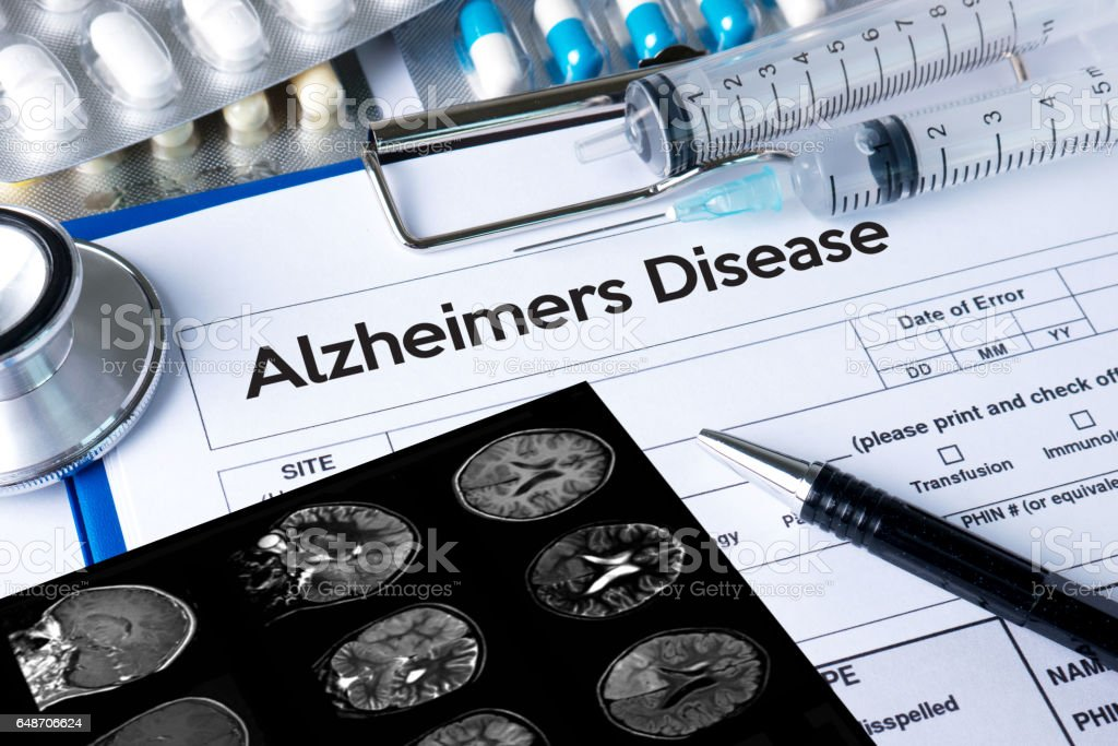 Alzheimers Disease concept , Brain degenerative diseases Parkinson stock photo