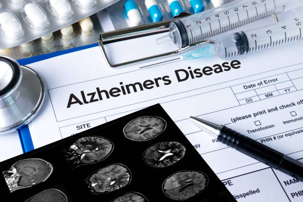 Alzheimers Disease concept , Brain degenerative diseases Parkinson stock photo