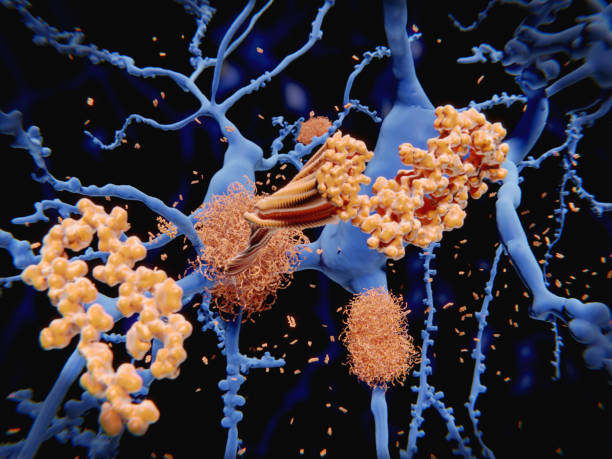 Alzheimer's disease: the amyloid-beta peptide accumulates to amyloid fibrils that build up dense amyloid plaques. stock photo