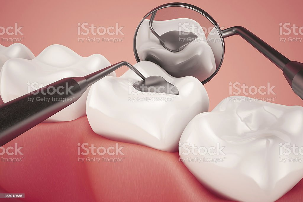 Amalgam Filling Checkup stock photo