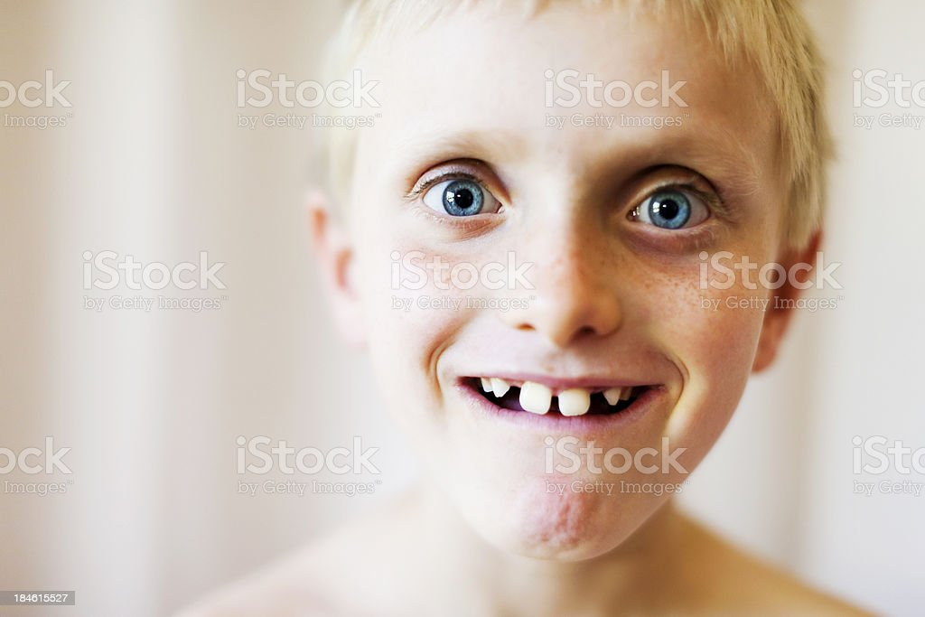 Amazed, goofy grin on gap-toothed wide-eyed boy's face stock photo