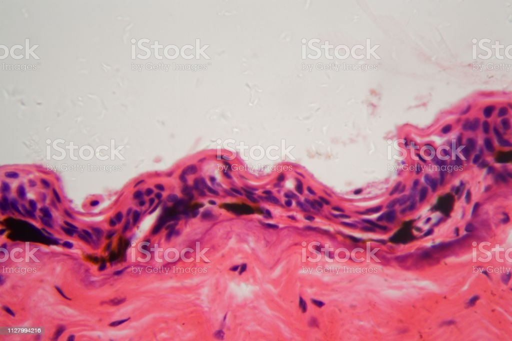 Amphibian skin with ulcer under a microscope stock photo