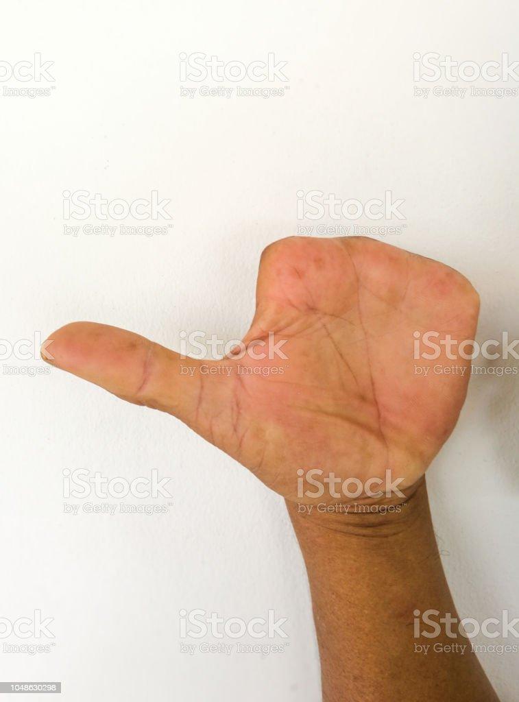 Finger des Menschen vom Unfall zu amputieren.Abnorme Hand ohne Finger. – Foto