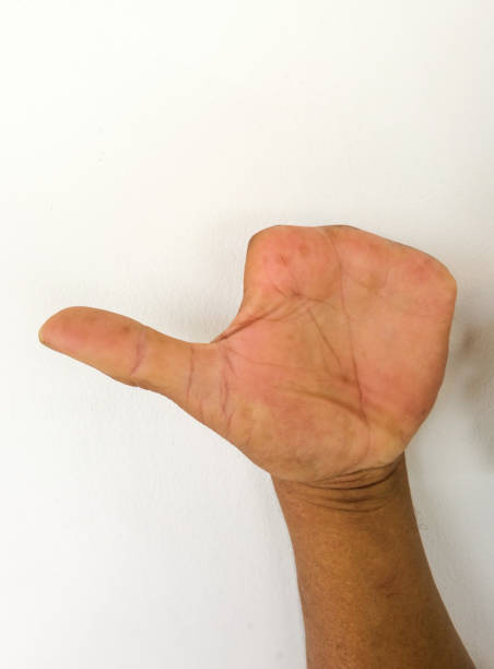 Amputate finger of people from accident.Abnormal hand without finger. stock photo