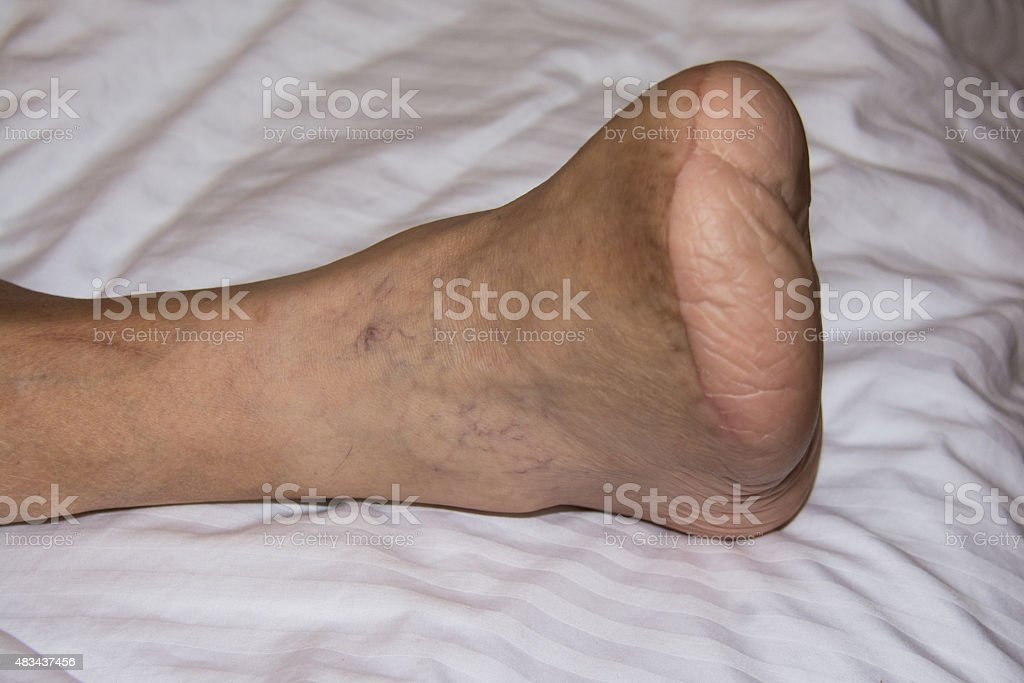 Amputated stock photo