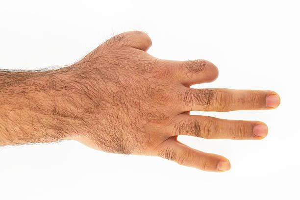 Hand Verloren