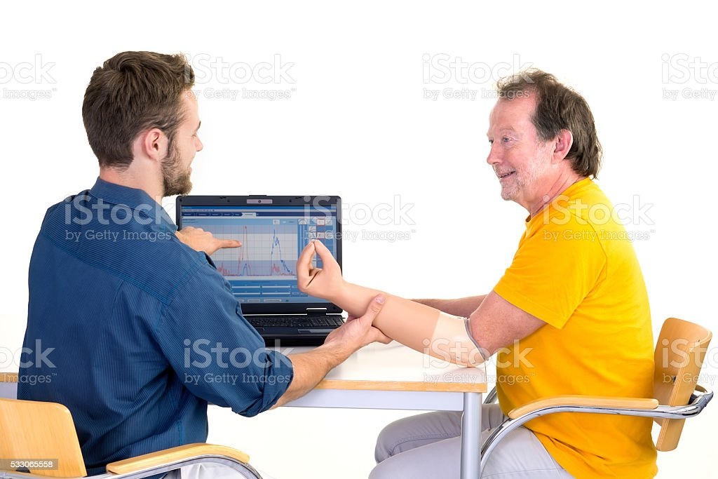 Amputee gets help for his prosthetic arm. stock photo