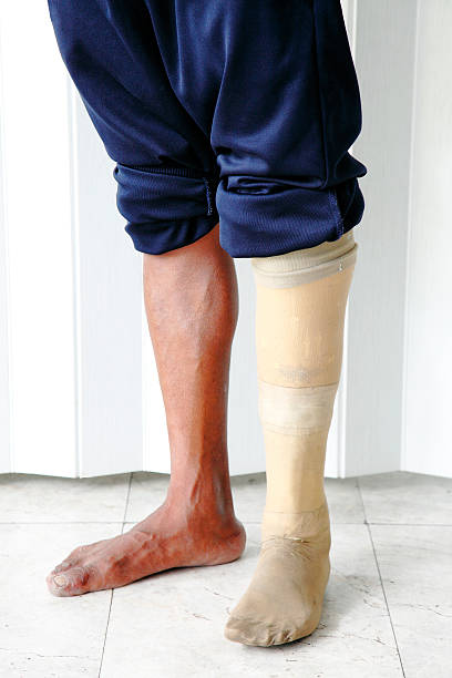 Amputee wearing a prosthetic leg standing stock photo
