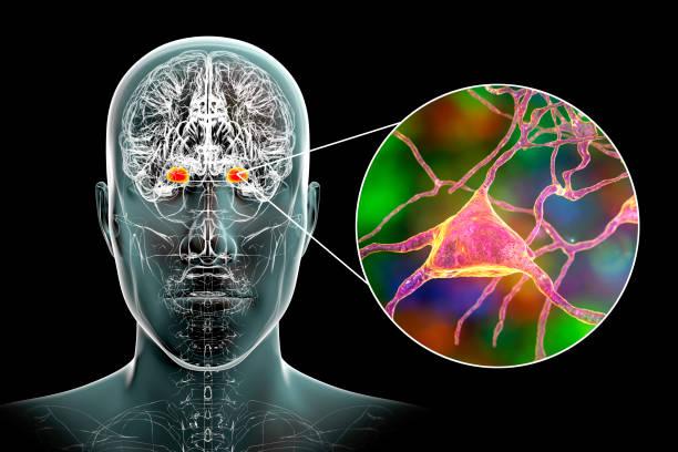 Amygdala in the brain, and closeup view of amygdala neurons, 3D illustration stock photo