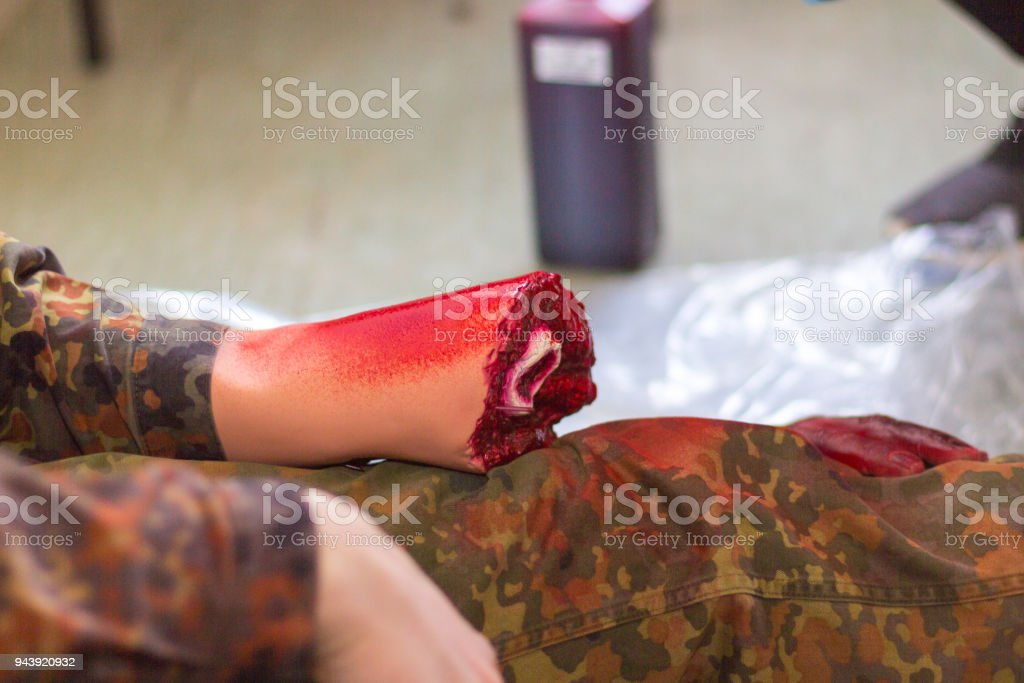 an amputated hand on a german soldier stock photo