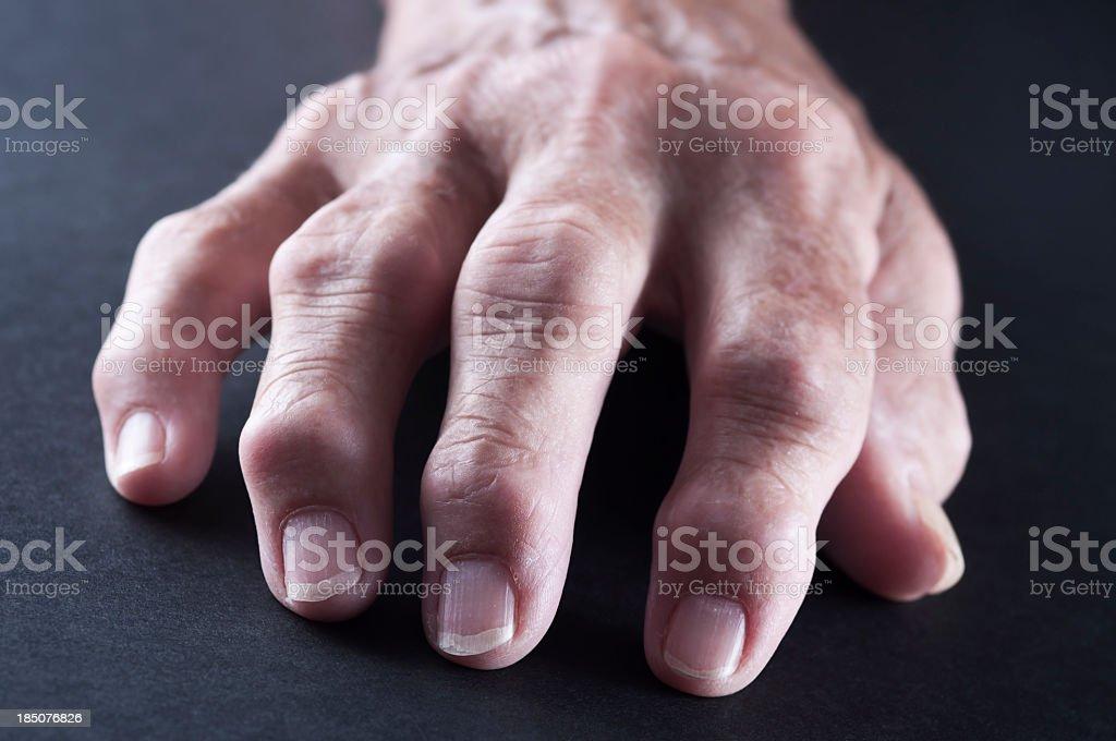 An elderly hand with Rheumatoid Arthritis stock photo