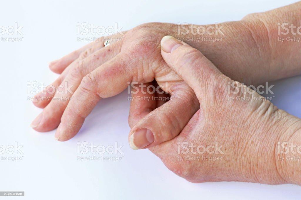 Una anciana tiene dolor en sus manos - foto de stock