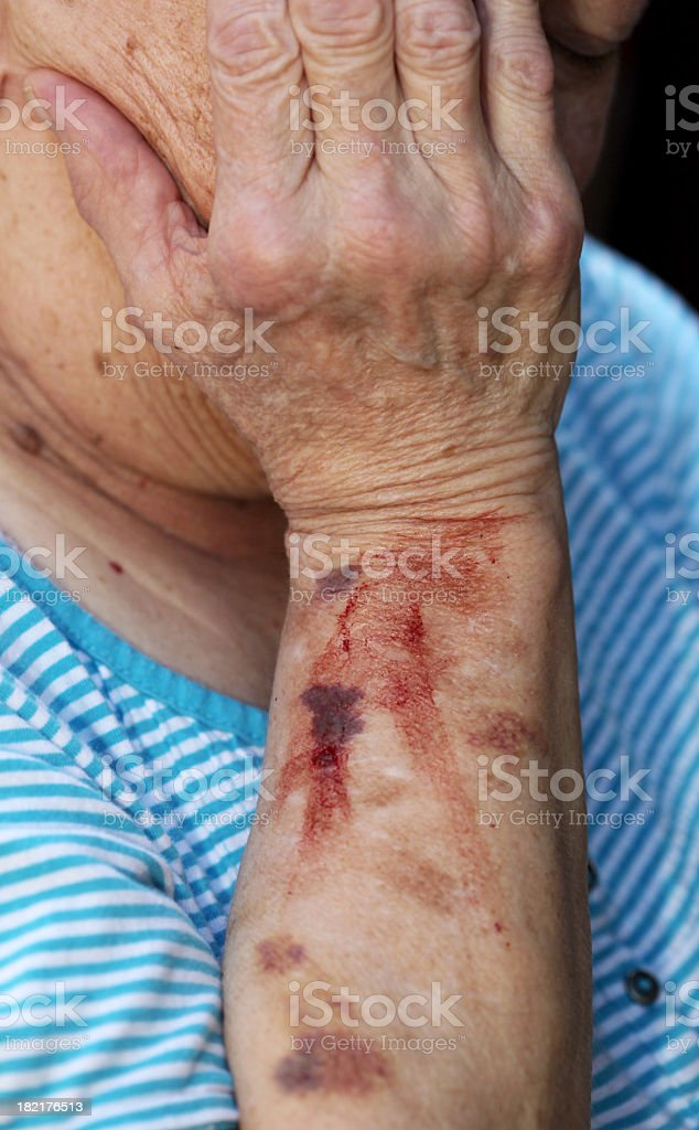 An old man with blood stain on his left arm stock photo