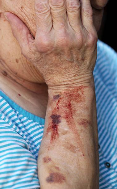 an old man with blood stain on his left arm - blauwe plek stockfoto's en -beelden