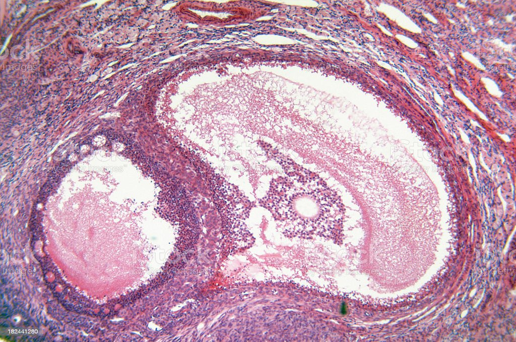 An up class of an ovary in light pink stock photo